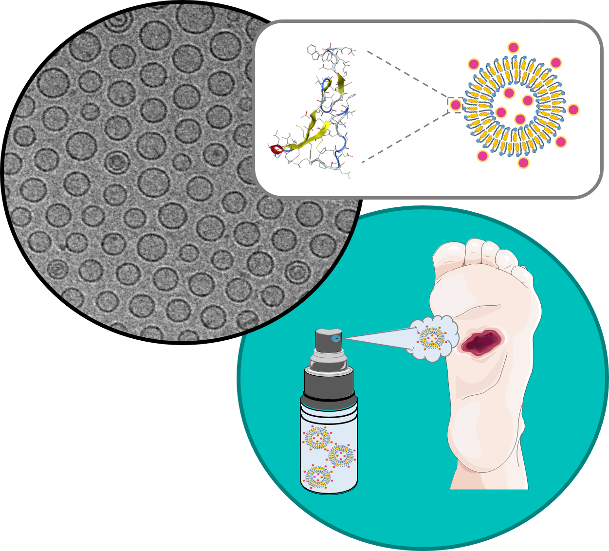 NEW DELOS NANOMEDICINE FOR THE TOPICAL TREATMENT OF COMPLEX WOUNDS